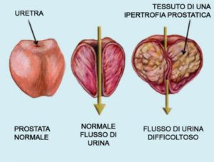 prostata ingrossata sintomi sessuali
