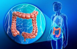 intestino pigro