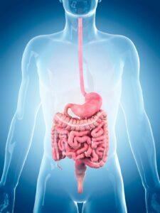 intestino irritabile